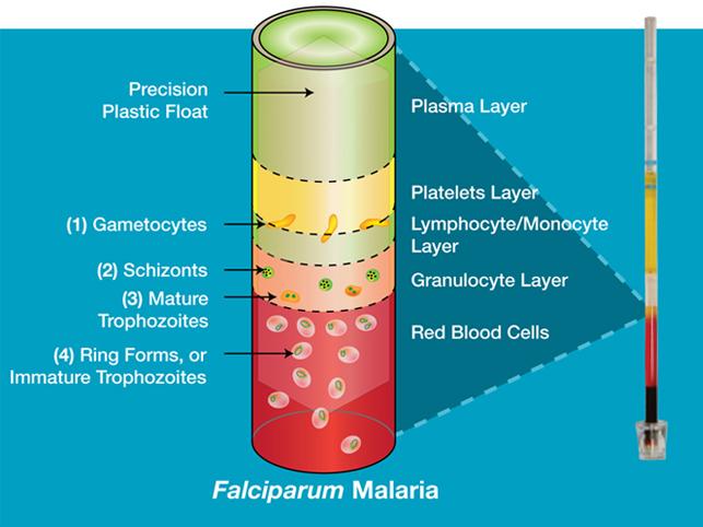 Woodley equipment qbc malaria kits qbc malaria tube ccuart Images